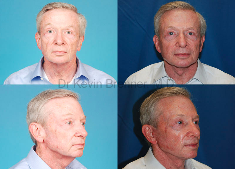 Facial Rejuvenation Gallery - Patient 1482548 - Image 1