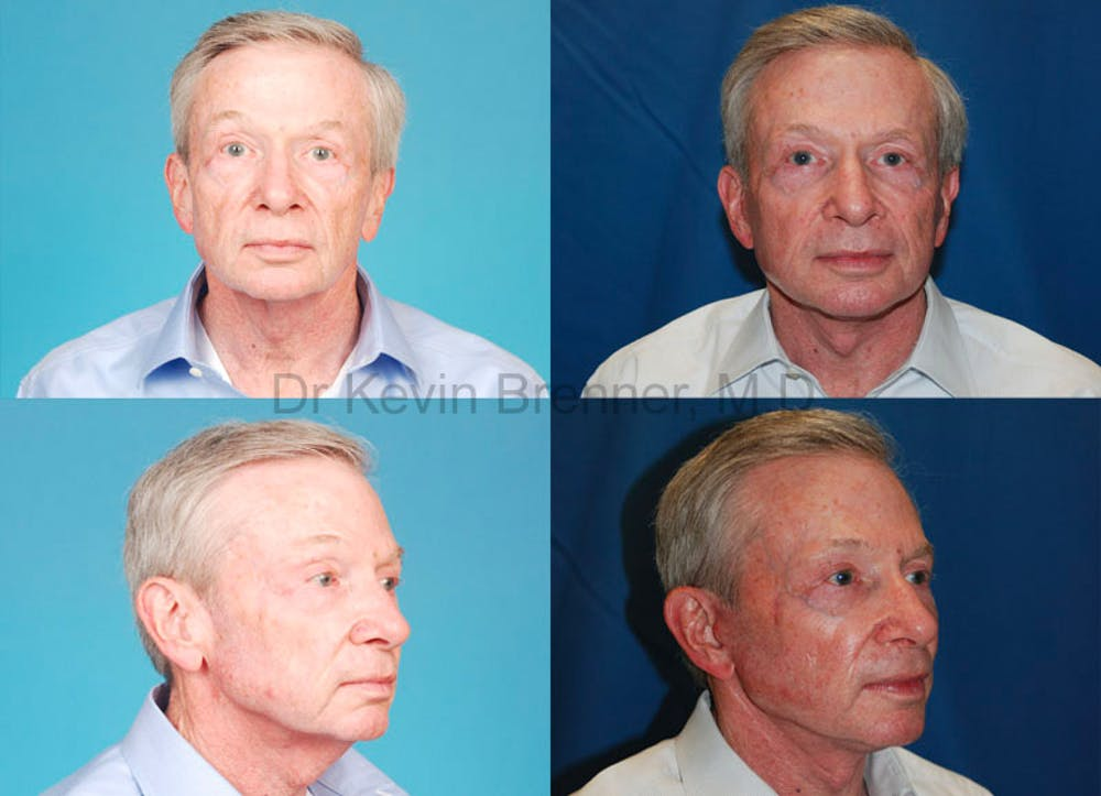 Facial Rejuvenation Gallery - Patient 1482548 - Image 1