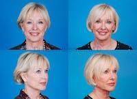 Facial Rejuvenation Gallery - Patient 1482551 - Image 1
