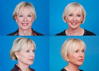 Facial Rejuvenation Gallery - Patient 1482551 - Image 2