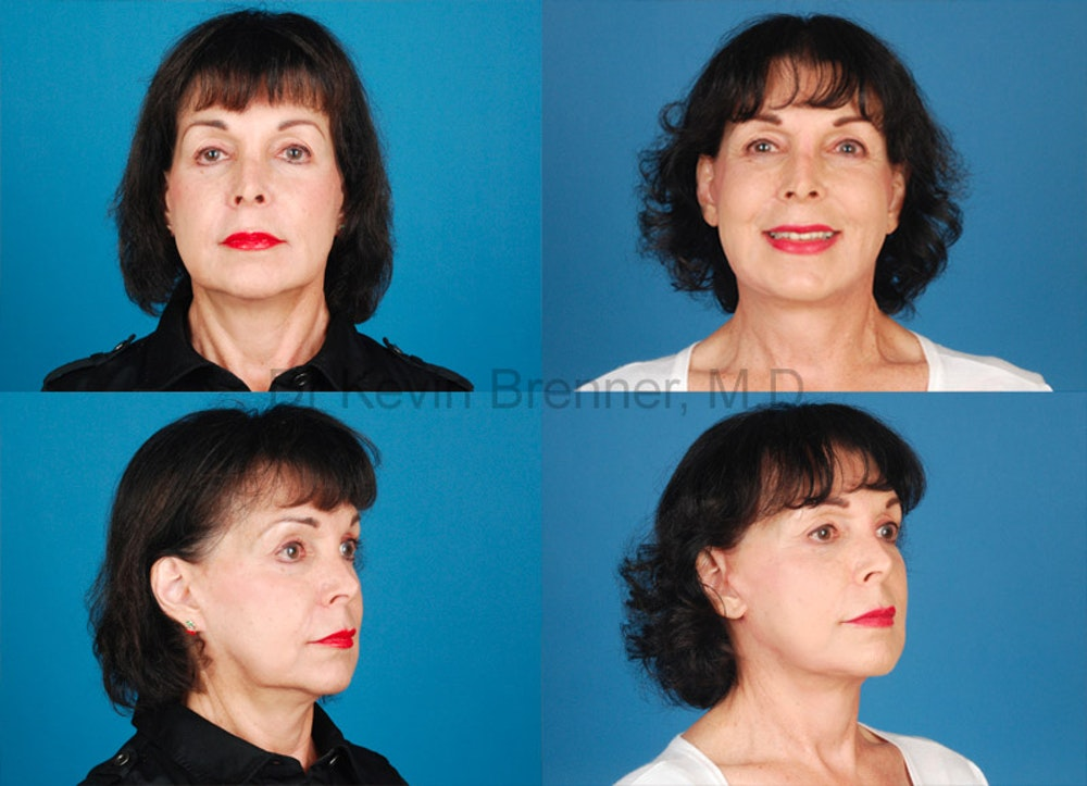 Facial Rejuvenation Gallery - Patient 1482553 - Image 1