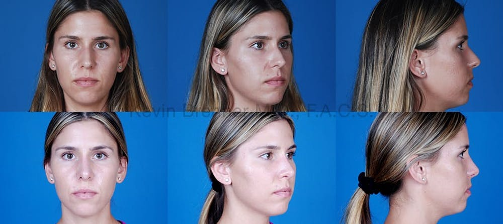 Before and after of beverly hills rhinoplasty patient 3