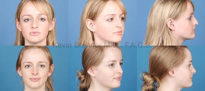 Rhinoplasty Gallery - Patient 1482554 - Image 1