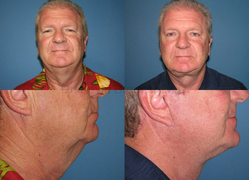 Facial Rejuvenation Gallery - Patient 1482555 - Image 1