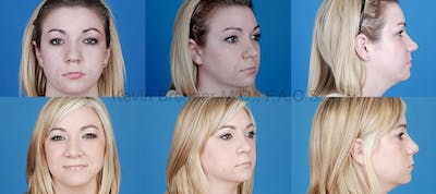 Rhinoplasty Gallery - Patient 1482556 - Image 8