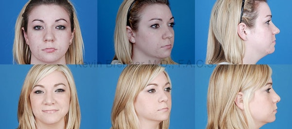 Rhinoplasty Gallery - Patient 1482556 - Image 1