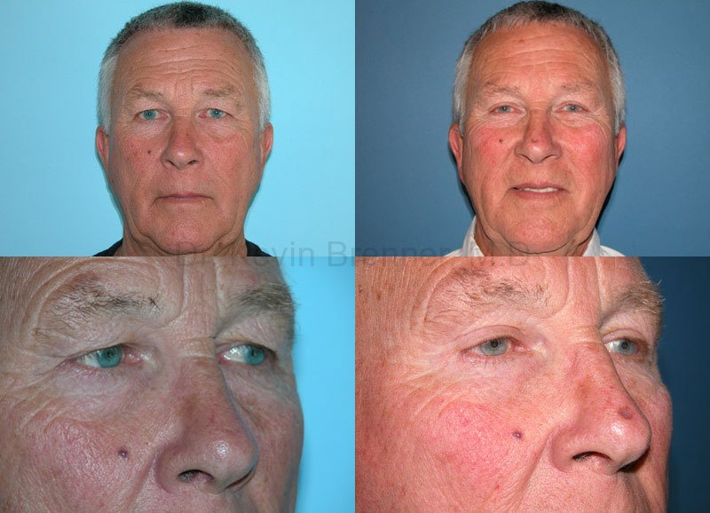 Facial Rejuvenation Gallery - Patient 1482558 - Image 1
