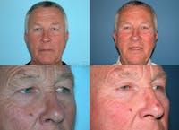 Facial Rejuvenation Gallery - Patient 1482558 - Image 1