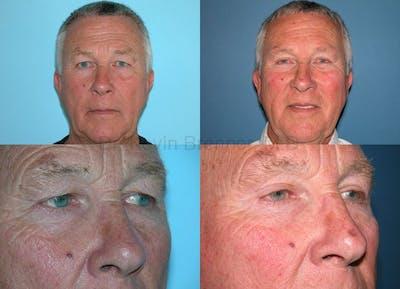 Facial Rejuvenation Gallery - Patient 1482558 - Image 5