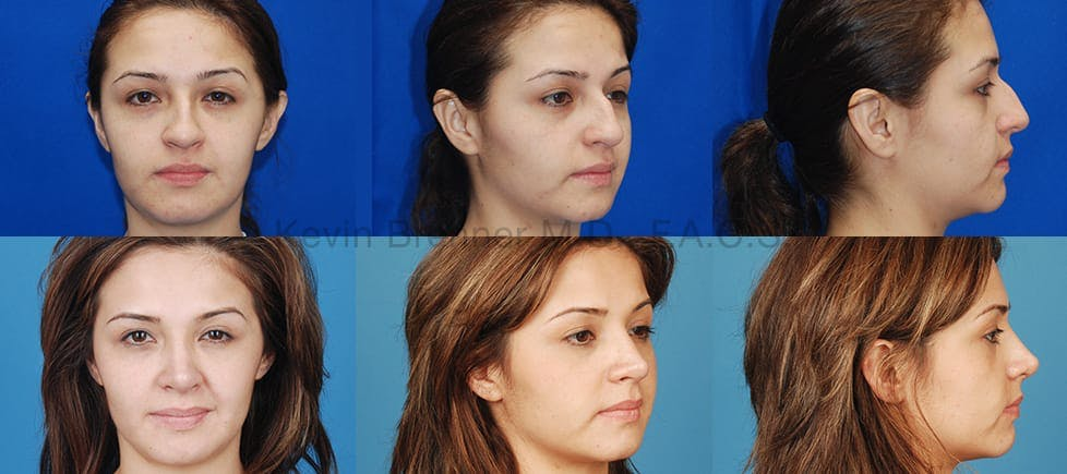 Before and after of beverly hills nose job patient 2