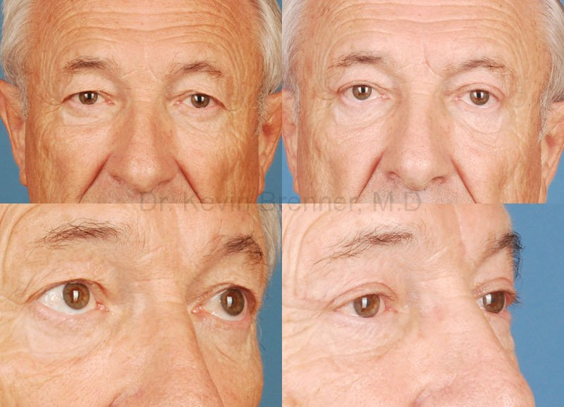 Eyelid Surgery Gallery - Patient 1482560 - Image 1