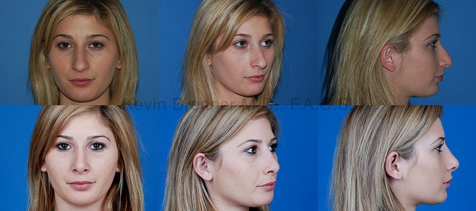 Before and after of beverly hills rhinoplasty patient 1