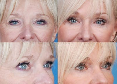 Eyelid Surgery Gallery - Patient 1482562 - Image 3