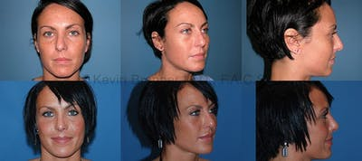 Rhinoplasty Gallery - Patient 1482563 - Image 11