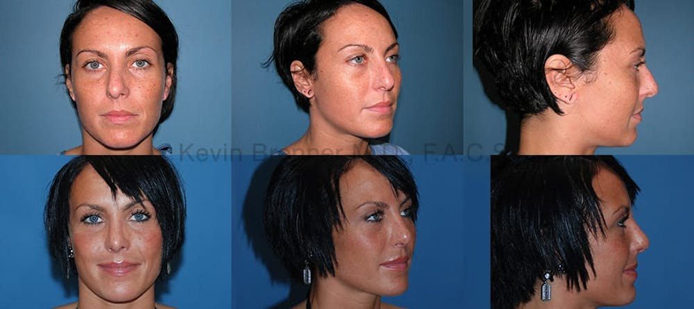 Rhinoplasty Gallery - Patient 1482563 - Image 1