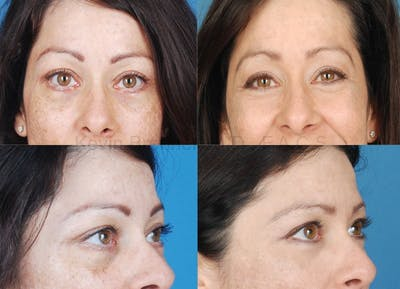 Eyelid Surgery Gallery - Patient 1482564 - Image 4