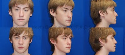 Rhinoplasty Gallery - Patient 1482565 - Image 12