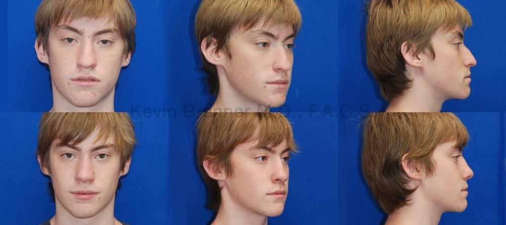 Rhinoplasty Gallery - Patient 1482565 - Image 1
