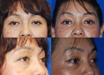 Eyelid Surgery Gallery - Patient 1482567 - Image 5