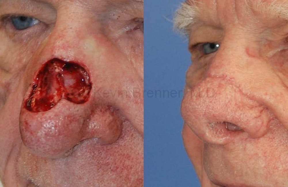 Skin Cancer Reconstruction Gallery - Patient 1482568 - Image 1