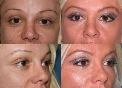 Eyelid Surgery Gallery - Patient 1482570 - Image 6