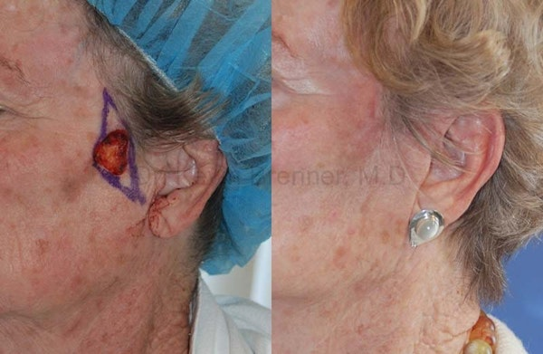 Skin Cancer Reconstruction Gallery - Patient 1482571 - Image 1