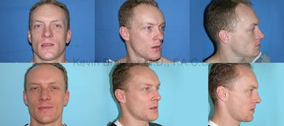 Rhinoplasty Gallery - Patient 1482572 - Image 1