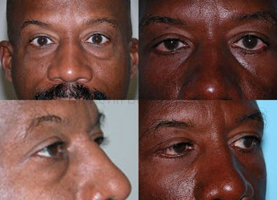 Eyelid Surgery Gallery - Patient 1482573 - Image 1