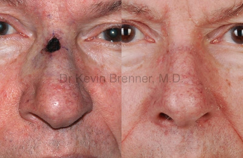 Skin Cancer Reconstruction Gallery - Patient 1482574 - Image 1