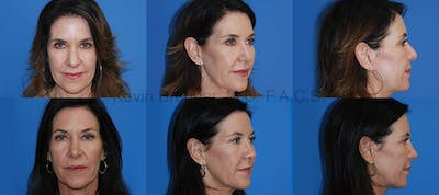 Rhinoplasty Gallery - Patient 1482575 - Image 1