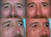 Eyelid Surgery Gallery - Patient 1482576 - Image 1