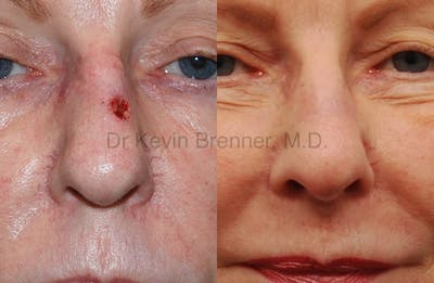 Skin Cancer Reconstruction Gallery - Patient 1482577 - Image 5