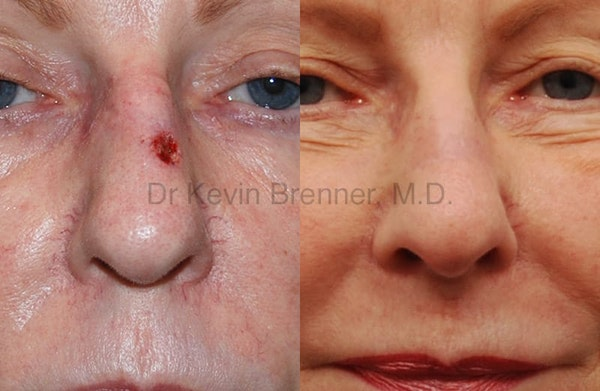 Skin Cancer Reconstruction Gallery - Patient 1482577 - Image 1