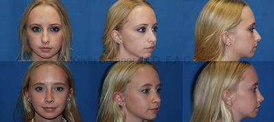 Rhinoplasty Gallery - Patient 1482578 - Image 1