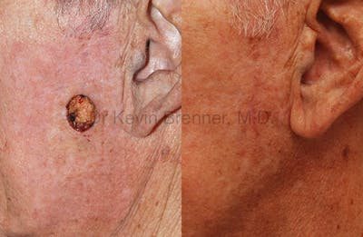 Skin Cancer Reconstruction Gallery - Patient 1482580 - Image 1