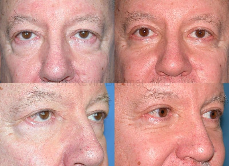 Eyelid Surgery Gallery - Patient 1482579 - Image 1
