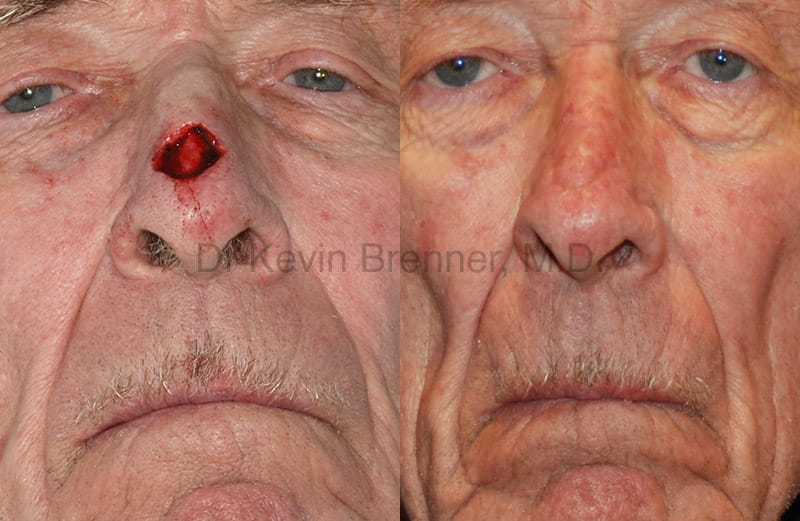 Skin Cancer Reconstruction Gallery - Patient 1482582 - Image 1