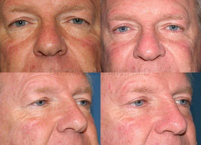 Eyelid Surgery Gallery - Patient 1482583 - Image 10