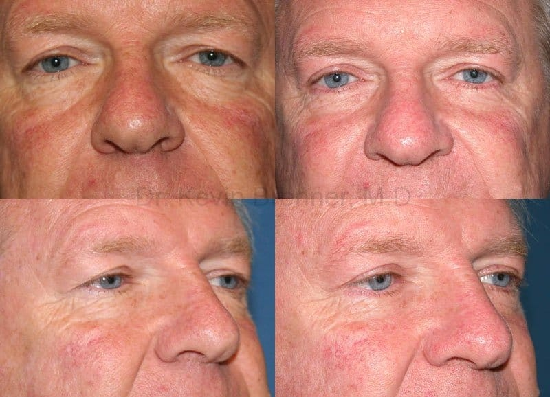 Eyelid Surgery Gallery - Patient 1482583 - Image 1