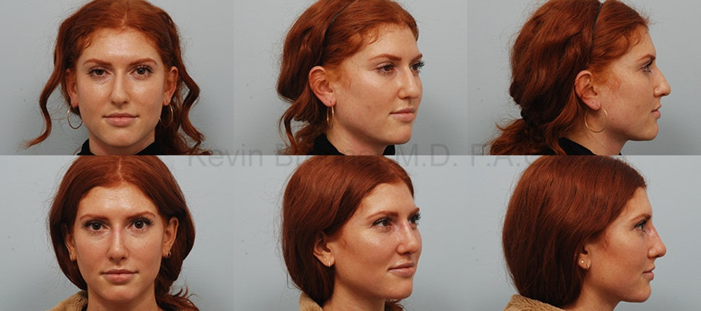 Rhinoplasty Gallery - Patient 1482584 - Image 1