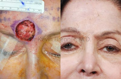 Skin Cancer Reconstruction Gallery - Patient 1482585 - Image 8