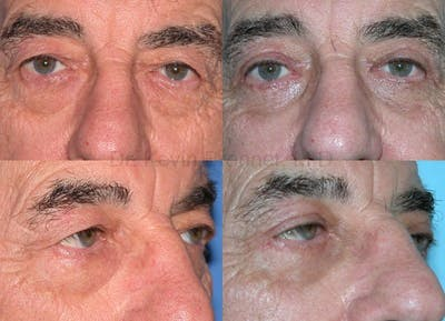 Eyelid Surgery Gallery - Patient 1482586 - Image 11