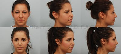 Rhinoplasty Gallery - Patient 1482587 - Image 19