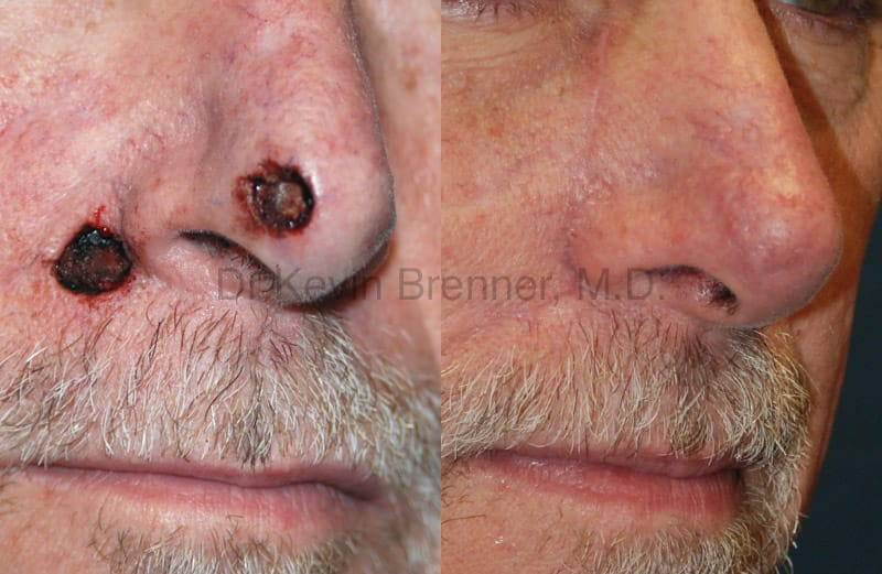 Skin Cancer Reconstruction Gallery - Patient 1482588 - Image 1