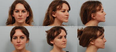 Rhinoplasty Gallery - Patient 1482589 - Image 20