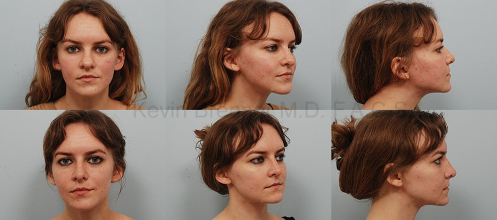 Rhinoplasty Gallery - Patient 1482589 - Image 1