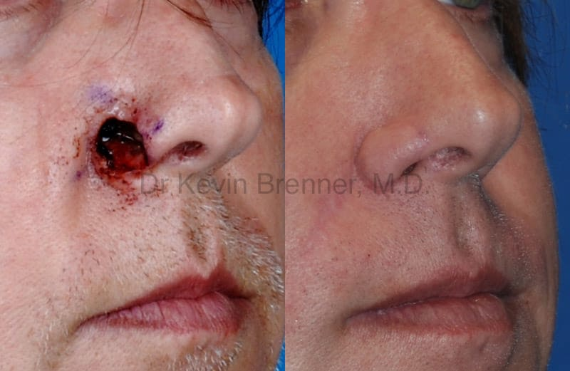 Skin Cancer Reconstruction Gallery - Patient 1482590 - Image 1