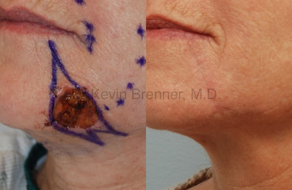 Skin Cancer Reconstruction Gallery - Patient 1482591 - Image 1