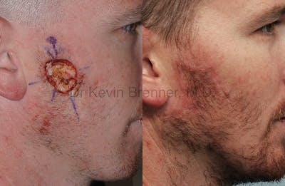 Skin Cancer Reconstruction Gallery - Patient 1482592 - Image 12