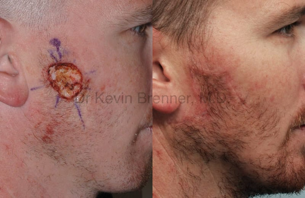 Skin Cancer Reconstruction Gallery - Patient 1482592 - Image 1